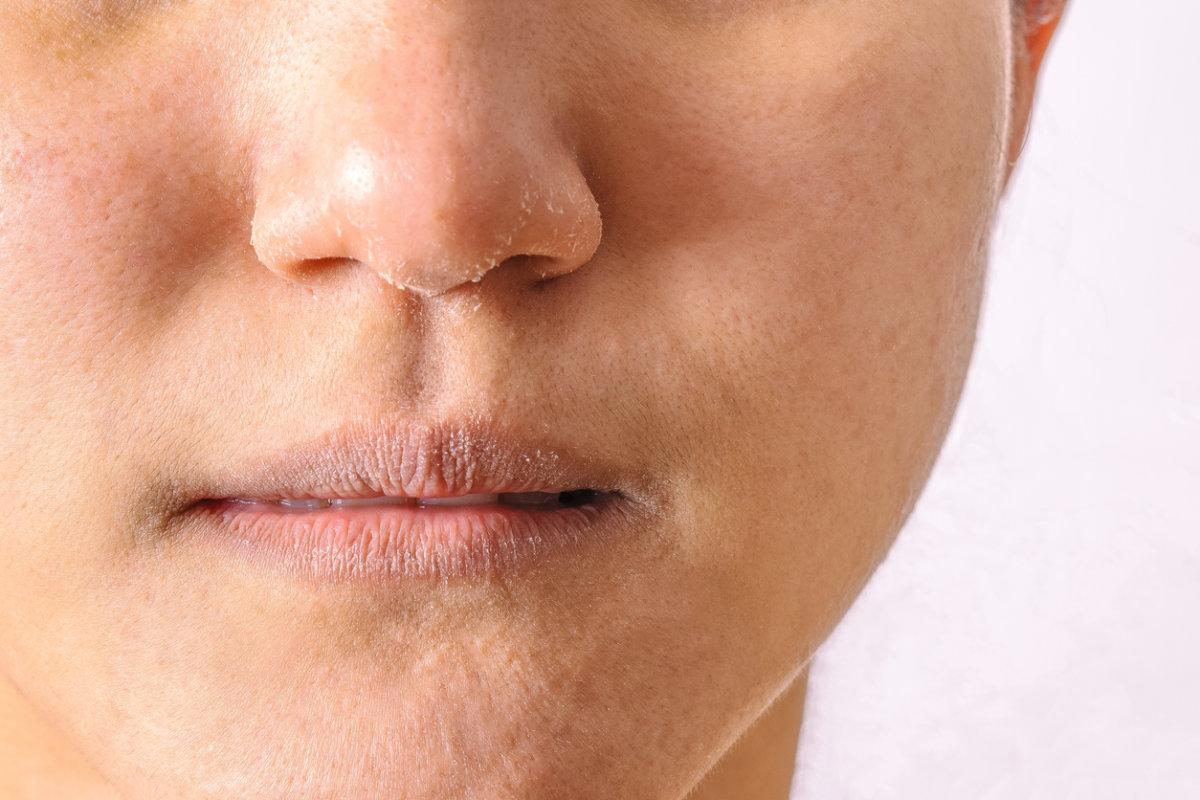 Você não tem ideia do que a vitamina D faz na pele