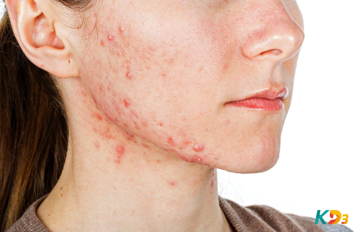 Você tem pele oleosa? 5 dicas preciosas para tratar o problema