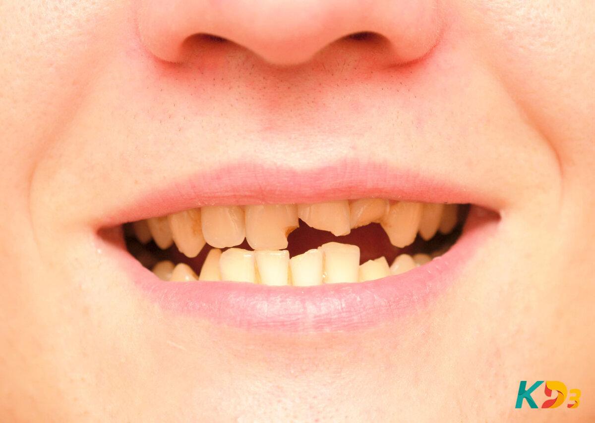 Dentes frágeis e quebradiços: saiba como cuidar