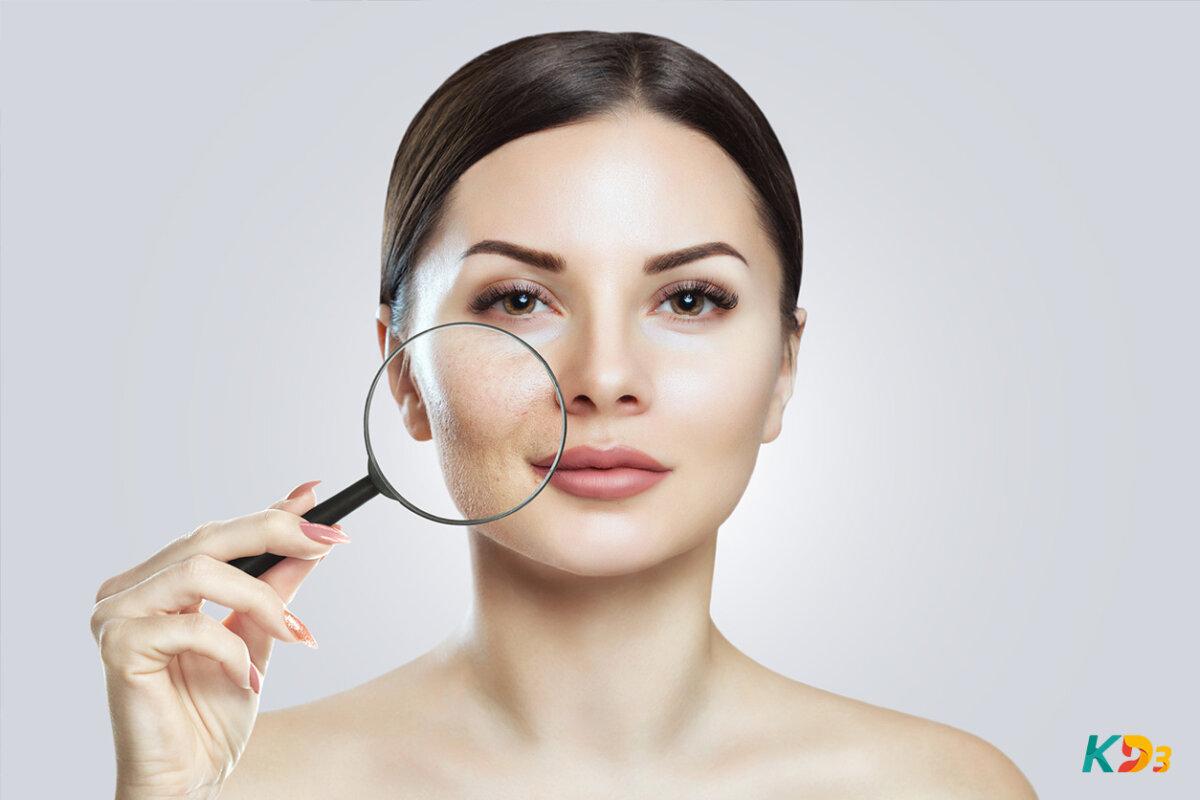 Poros dilatados saiba como prevenir e tratar